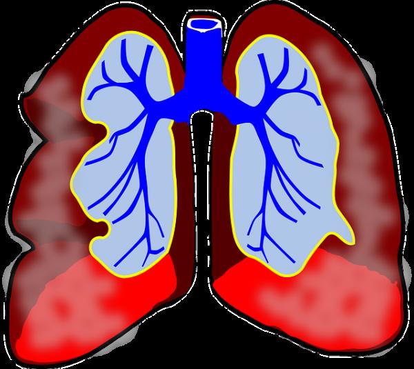 Zalecenia dietetyczne wleczeniu astmy iprzewlekłej obturacyjnej choroby płuc (POChP)