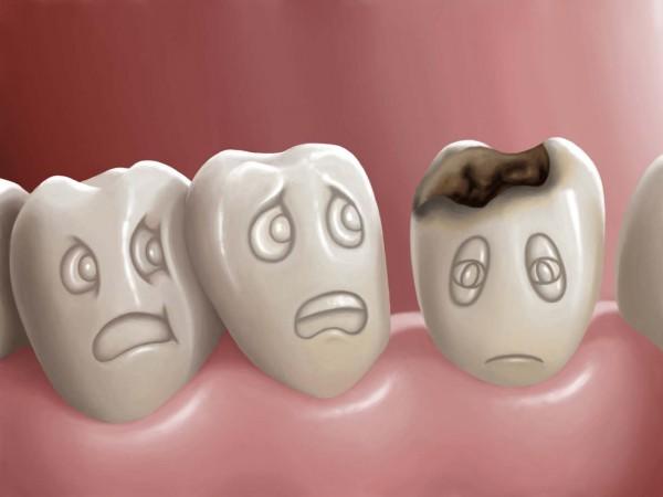 Próchnica zębów – pomocna rola diety