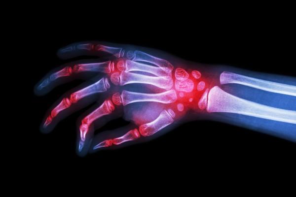 Reumatoidalne zapalenie stawów – w czym problem?